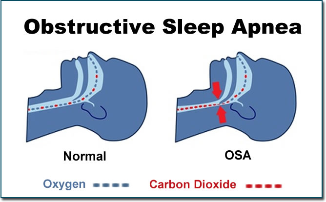 Graphic of obstructive sleep apnea with normal view and OSA view