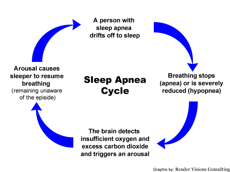 Graphic illustration of the four repeating steps of the sleep apnea cycle: 1) Breathing stops or slows severely, 2) The brain detects drop in oxygen and/or increase in carbon dioxide, 3) Arousal causes sleeper to resume breathing, 4) Repeat.